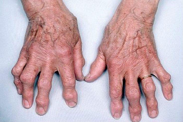 Артрит Большого Пальца Стопы Фото