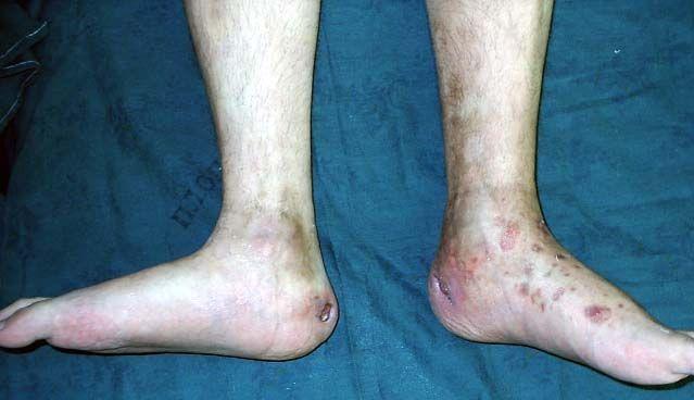 Клинические Ревматоидный Артрит