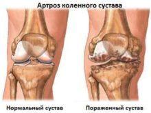 Деформирующий артроз коленного сустава: 15 рекомендаций врача для здоровья суставов