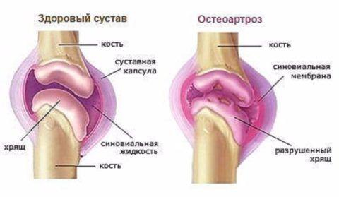 Деформирующий остеоартроз колена развивается чаще в пожилом возрасте у женщин.