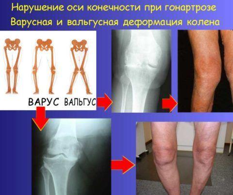 Деформирующий остеоартроз коленных суставов приводит к искривлению нижних конечностей.