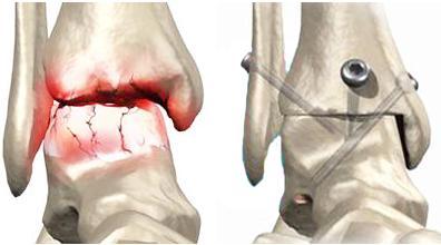 Для облегчения состояния больного применяют процедуру артродез.