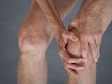Лечение деформирующего артроза коленных суставов: современные методики и домашние способы
