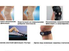 Как выбрать наколенники при артрозе коленного сустава: полезные советы, рекомендации