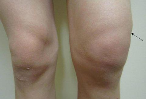 Основными симптомами при гемартрозе являются отек и припухлость сустава.