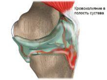 Гемартроз коленного сустава: симптомы, причины и методы лечения