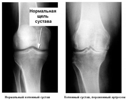Рентген покажет изменения, что произошли в суставе.