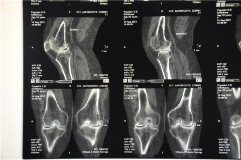 На фото - снимки, полученные на МРТ