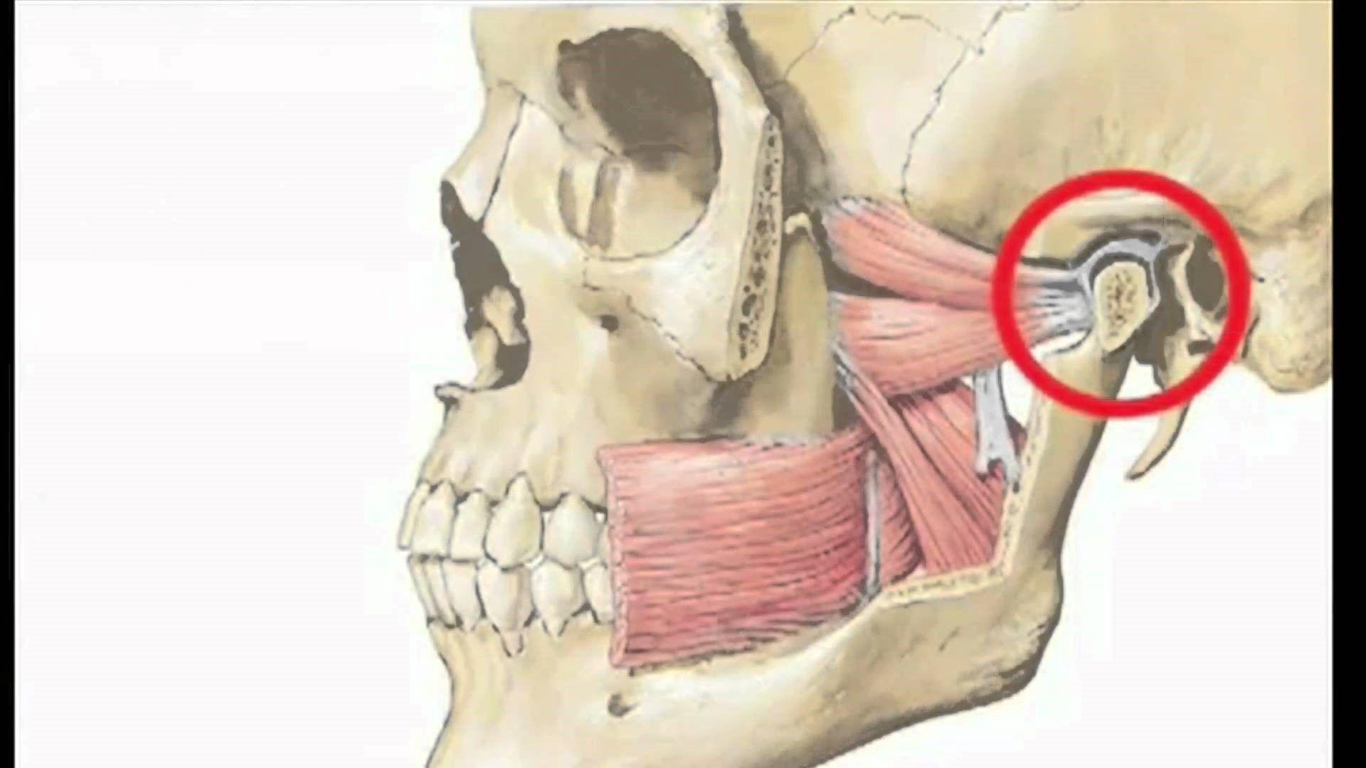Артроз ВНЧС развивается при патологии зубов или мышц в этой области