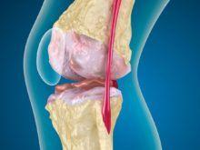Артроз коленного сустава 1 степени — причины, симптомы и лечение