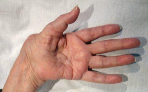 Артроз у пациентки сопровождается выраженной деформацией