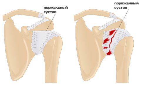 Артроз плечевого сустава образуется из-за нарушения структуры хряща