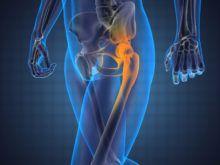 Артроз тазобедренного сустава — читать всем, кто знаком с болезнью не понаслышке
