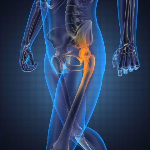 Артроз тазобедренных суставов — достаточно тяжелая патология