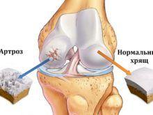 Артроз коленного сустава: почему болят коленки, и как с этим бороться
