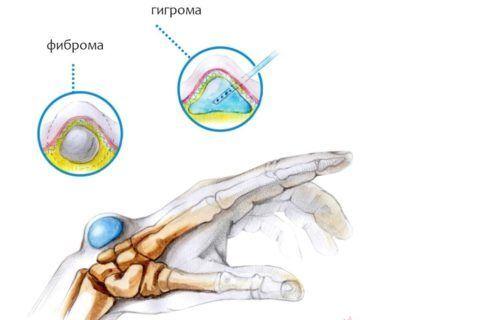 Гигрома плечевого сустава лечение - Все про суставы