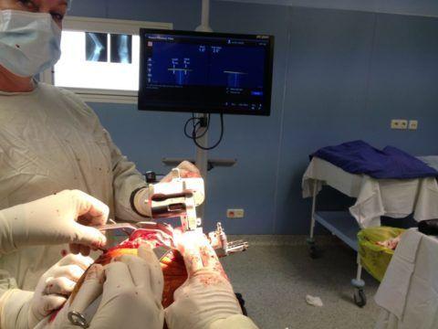 Если консервативные методы лечение при артрозе коленей не помогают, то выполняют хирургическое вмешательство.
