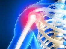 Артроз плечевого сустава — как проявляется и чем лечить