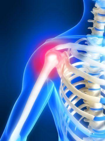 Формирование артроза плеча способно привести к потере трудоспособности