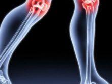 Гонартроз коленного сустава: что делать, если коленки болят и не хотят сгибаться