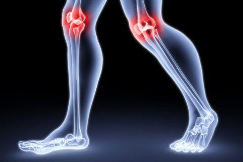Характерные проявления артрита - это боль и хруст в суставе