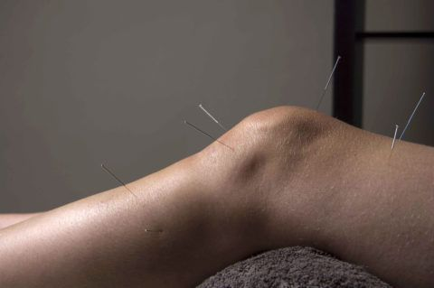 Иглоукалывание способствует восстановлению тканей сустава.