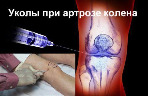 Инъекции при артрозе в колена приносят быстрый и действенный результат.
