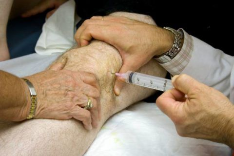 Инъекция лекарственного средства в коленный сустав