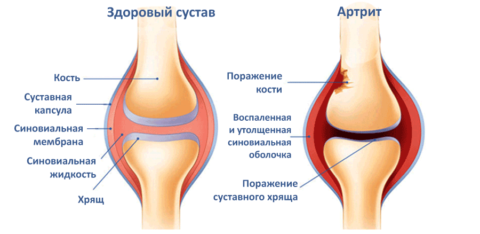 Изменение коленного сустава при ревматизме