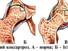 Коксартроз тазобедренного сустава – степени развития и способы лечения