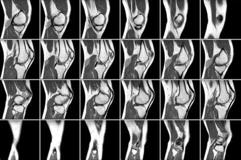 Компьютерная томография позволяет всесторонне оценить состояние сустава