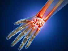 Артроз лучезапястного сустава — причины, симптомы и лечение