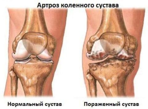 На фото изображен артроз коленного сустава.