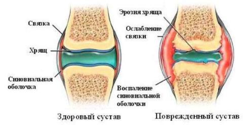 На фото изображены здоровый и поврежденный суставы