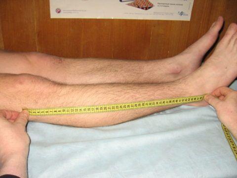 На третьей стадии можно заметить укорочение ноги