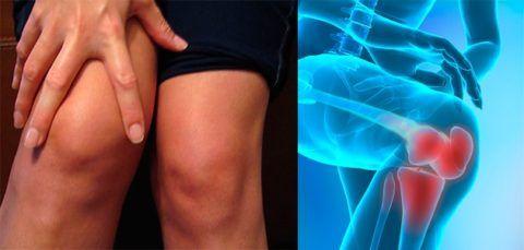 Одними из первых признаков патологии являются дискомфорт и припухлость в области коленей.
