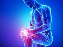 Артроз коленного сустава 3 степени — симптомы и лечение