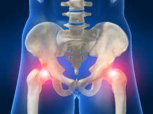 Лечение артроза тазобедренного сустава — традиционная терапия и средства народной медицины