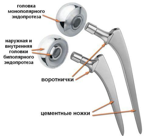 Самые известные протезы выпускаются группой компаний depuy