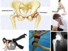 ЛФК при коксартрозе тазобедренного сустава – как выполняются упражнения?