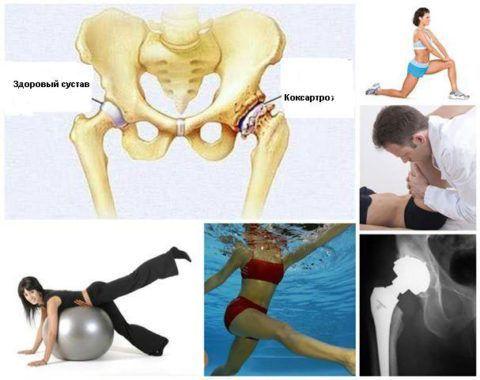 Упражнения для тазобедренного сустава при коксартрозе: гимнастика и видео ЛФК