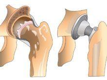Эндопротезирование тазобедренного сустава: от чего зависит успешность операции?