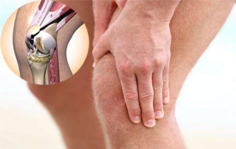 Артрит коленей имеет большой диапазон признаком в зависимости от вида недуга.