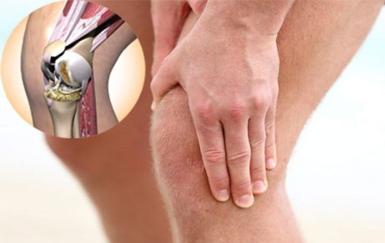 Артрит коленного сустава – целебный массаж и необходимые препараты