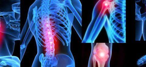 Диета при артрите суставов - что нельзя, что можно и что нужно есть при артрите?