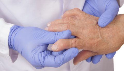 Артрит характеризуется ярким воспалительным процессом