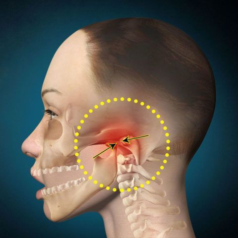 Артроз челюстного сустава приводит к нарушению движений челюсти
