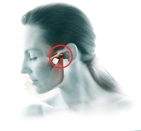 Артрозным изменениям могут быть подвержены и суставы челюсти
