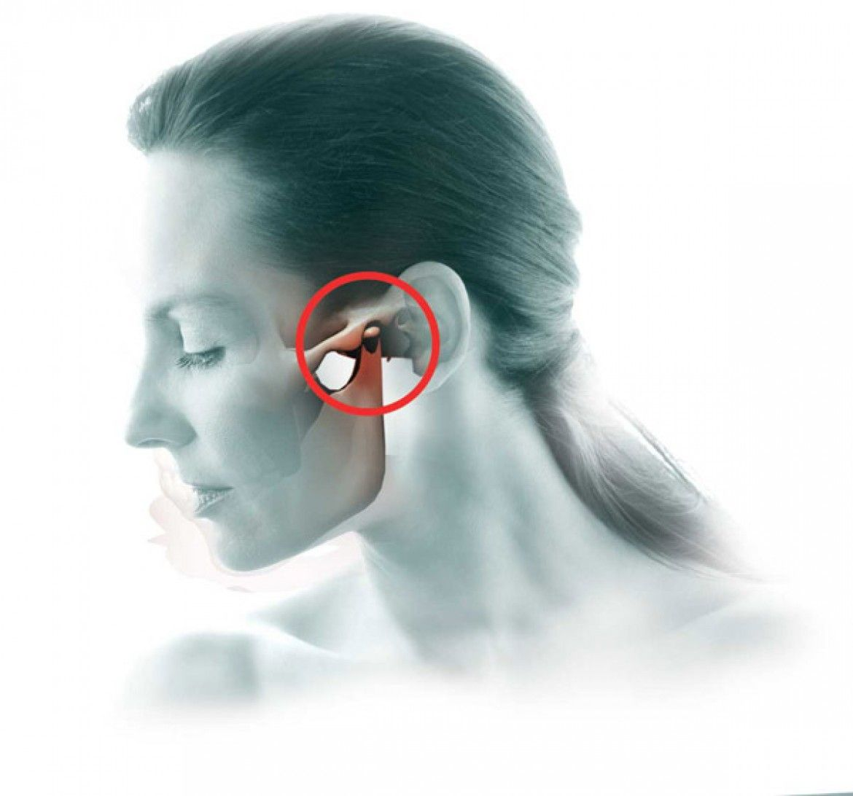 Артроз челюстного сустава — в чем причины развития, как протекает заболевание