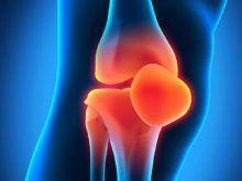 Лечение остеоартроза коленного сустава — медикаментозная терапия, рецепты народной медицины